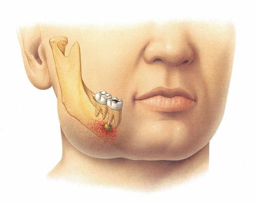 Болит зуб мудрости опухла щека что делать