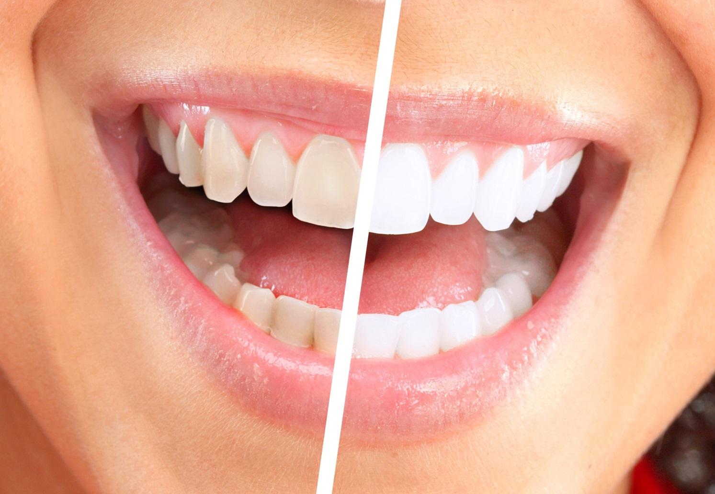 Отбеливание зубов в Казани цены – «Городская стоматология»