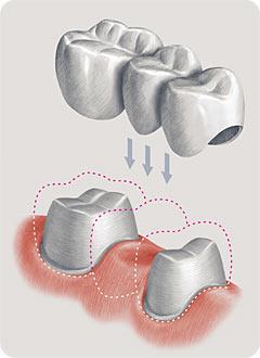 Установка металлокерамики назубы